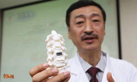 全球首例!西安成功实施3D打印人工颈椎间盘置技术